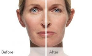 Luxurious collection Juvederm