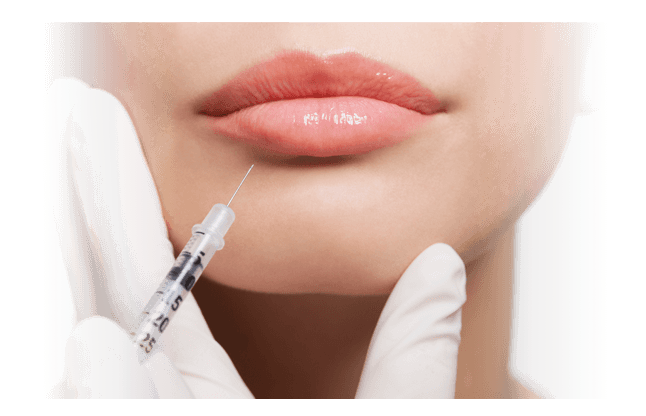 Filler Injections for Lips